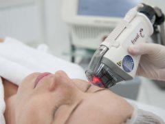 Фракционный фототермолиз: альтернатива подтяжкам лица