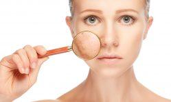 Себорея на лице: нарушение работы сальных желез