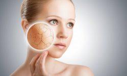 Шелушение кожи на лице: как вылечить