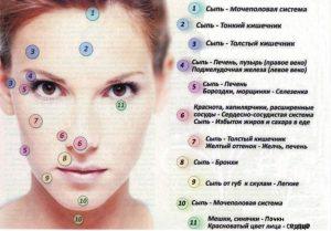 Как вылечить гнойное воспаление на лице
