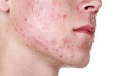 Папулы на лице: неприятные плотные узелки