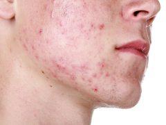 Гнойники на лице: как эффективно вылечить неприятные прыщи