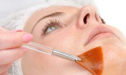 AHA пилинг: обновление кожи без хирургических вмешательств