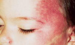 Гемангиомы на лице: чем опасны возникающие покраснения