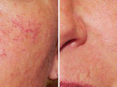 Крем от купероза на лице: как избавиться от сосудистой сеточки