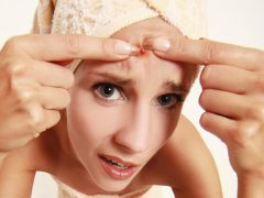 Как избавиться от прыщей на лице: быстро и эффективно