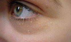 Милиумы на лице: устраняем белые угри