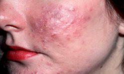 Большие красные прыщи на лице: причины появления