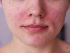 Красные пятна на лице: что провоцирует появление