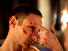 Быстрое заживление ран на лице: как не допустить инфицирования