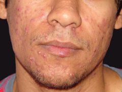 Демодекоз кожи лица: как вылечить подкожный клещ