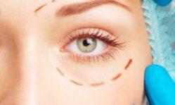 Немного о пластической хирургии: красивые глаза и плоский животик
