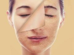 Уставшая и дряблая кожа лица: причины, диагностика, лечение