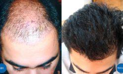 Восстановление волос и трансплантация: какая разница и что выбрать